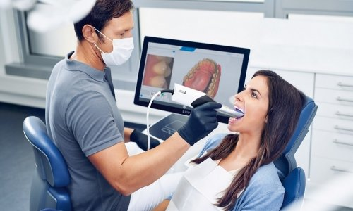 Внутриоральное 3D сканирование зубов