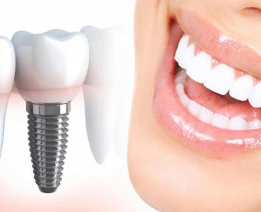 Зубные импланты Straumann