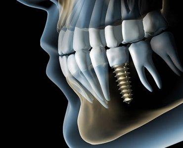 Компьютерная 3D-томография зубов