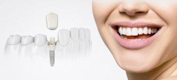 Зубные импланты Osstem
